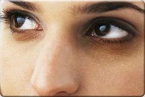 چطور سیاهی دور چشمم را برطرف کنم؟
